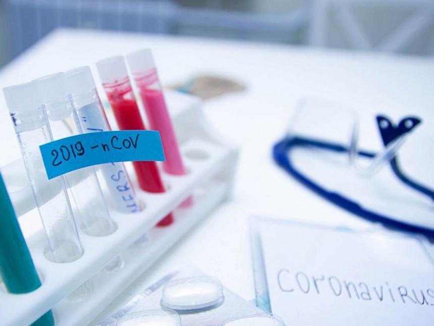 U Republici Srpskoj 103 nova slučaja virusa korona
